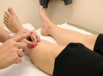Acupuncture – How it Works and the Benefits